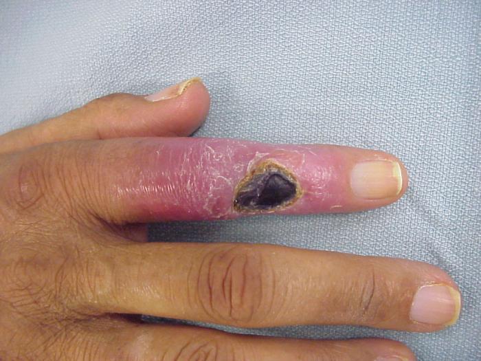Нарывает рана на пальце