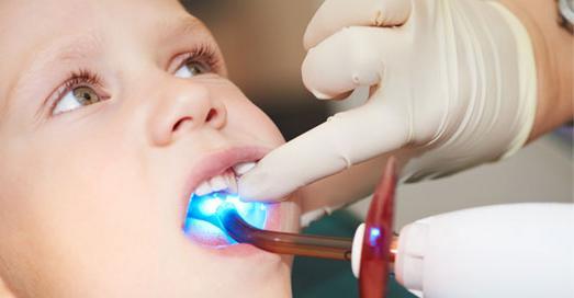 герметизация зубов у детей