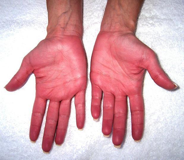 болезнь вакеза