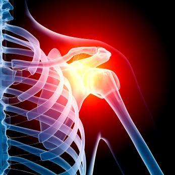 Растяжение плечевого сустава симптомы