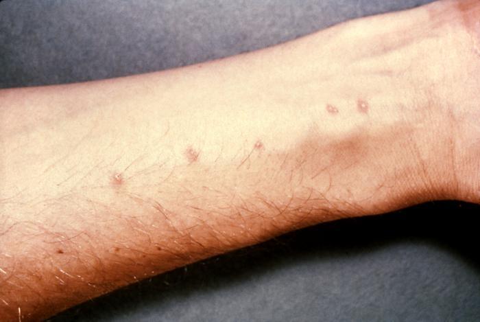 лечение паразитов антибиотиками