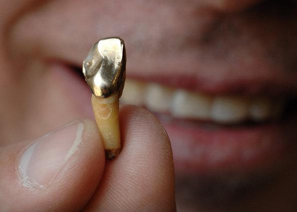 какие коронки на зубы жевательные