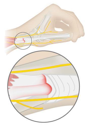 Боль в кишечнике справа с боку