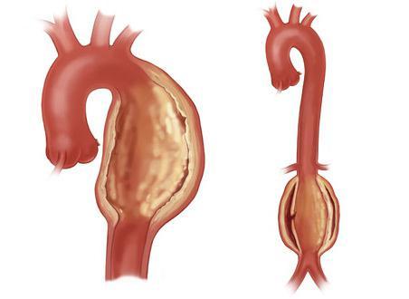 Что такое аневризма аорты