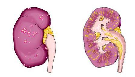 Как лечит пиелонефрит у беременных
