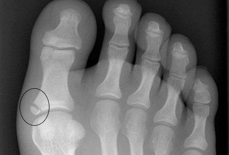 гангрена пальца ноги при сахарном диабете