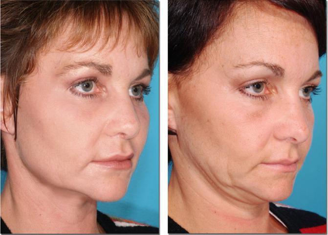 Лазерная шлифовка лица: отзыв, противопоказания, уход за кожей после процедуры