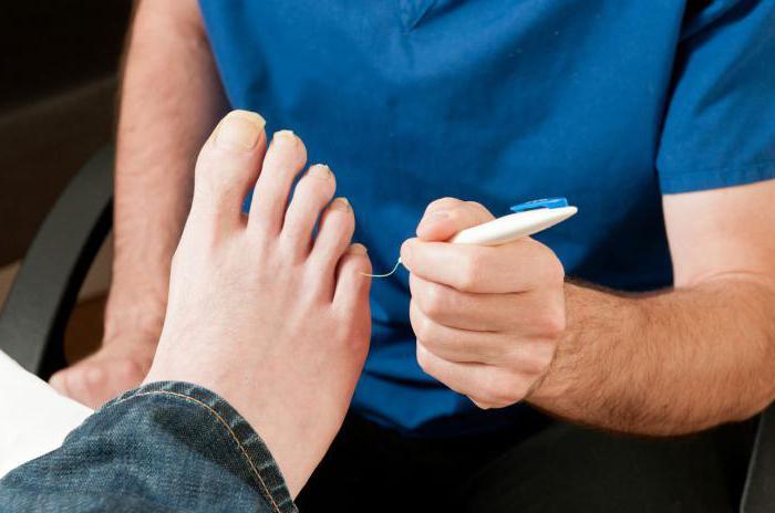 Лечение диабетической стопы в домашних условиях народными средствами: рецепты, эффективность и отзывы