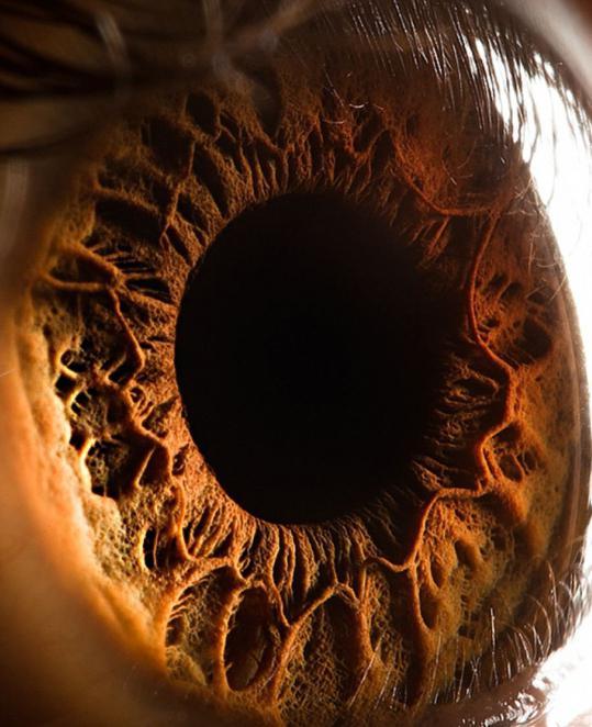 что обозначает глаза разбегаются