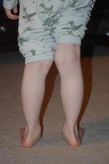 Упражнения при плоскостопии у подростков