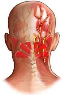 Чем лечить невралгию спины
