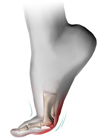 Воспаление суставов больших пальцев ног