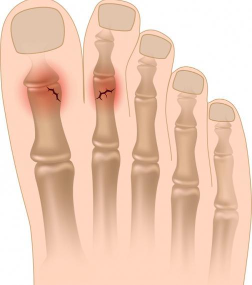 Опух сустав большого пальца ноги
