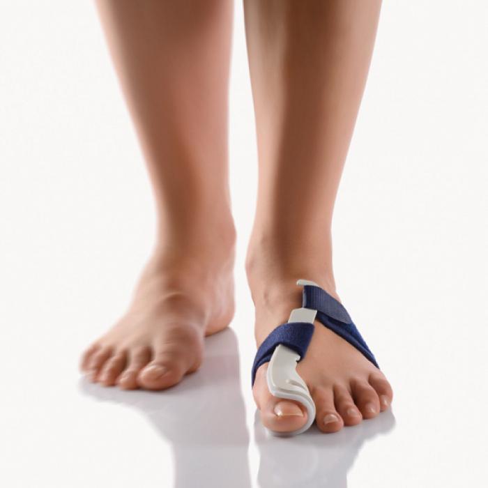 Лечение сустава большого пальца ноги