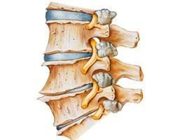 Болит шея и затылок причины лечение