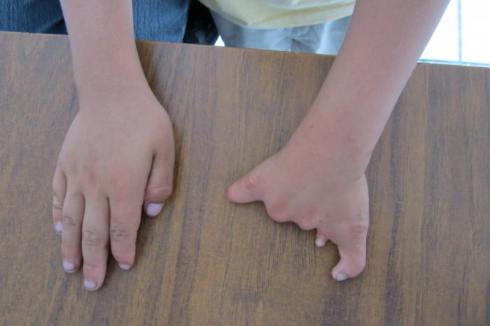 Синдром Холта-Орама. Синдром «рука-сердце»
