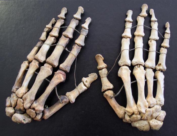 Ангина с гнойниками на миндалинах лечение в домашних условиях