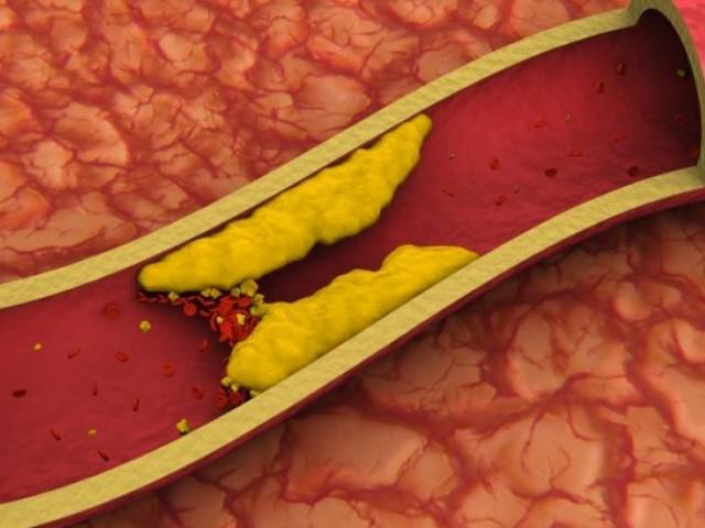 повышенного холестерина болит голова