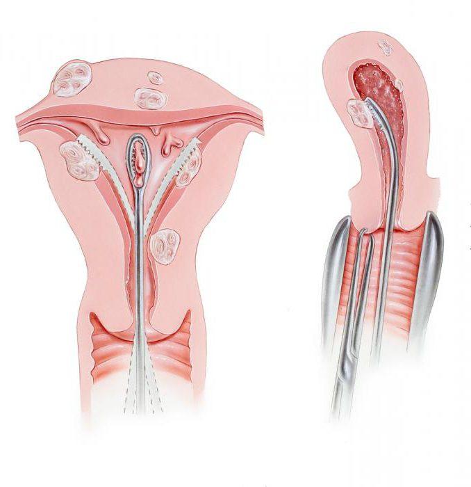 расположение шейки матки на ранних сроках беременности