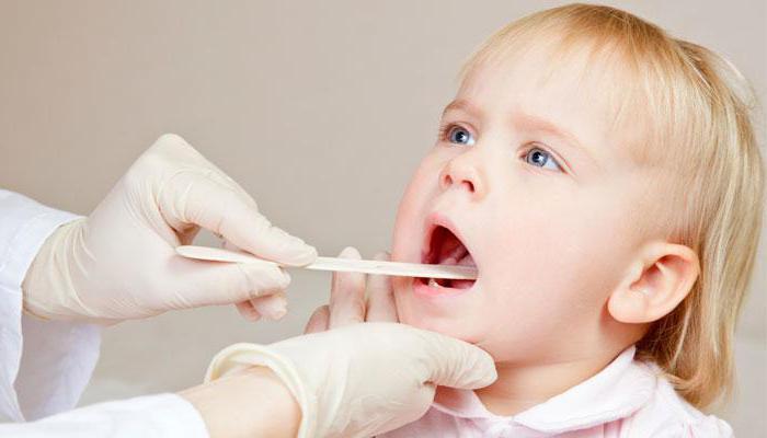 хронический тонзиллит симптомы и лечение у детей