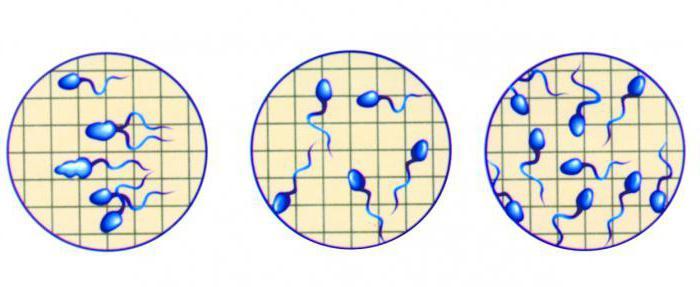 norma-antispermalnih-antitel-v-sperme