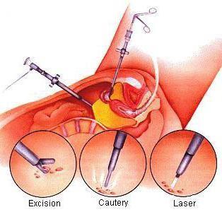 Подготовка и этапы операции по удалении кисты яичника