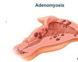 Аденомиоз матки - что это такое? Аденомиоз матки: лечение народными средствами, отзывы
