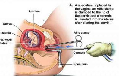 где можно сделать аборт