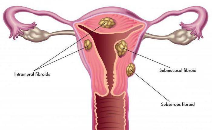Боли в области матки что это может быть