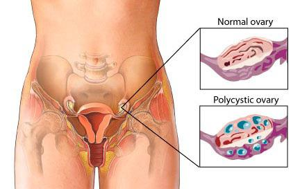 Яичники болят во время секса