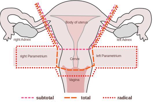 Удаление яичника последствия и состояние организма 1