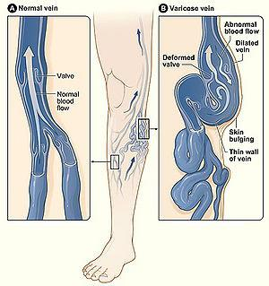 Лечение варикоза лазером