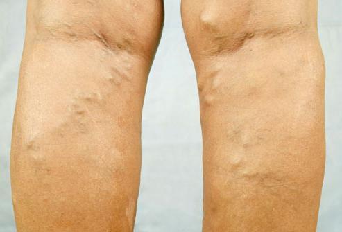 Лечение варикоза вен на ногах лазером цена последствия отзывы