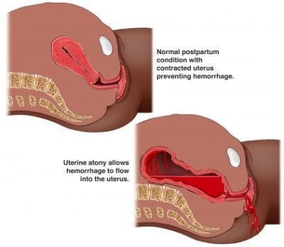 Хронический эндометрит: симптомы и лечение. Народные средства в лечении эндометрита