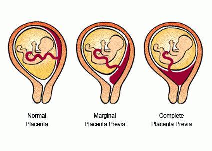 низкая плацентация при беременности 20 недель причины