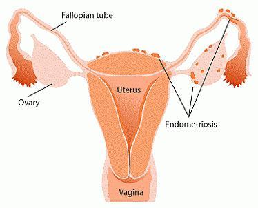 Препараты при эндометриозе