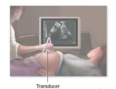Второе узи при беременности на каком сроке лучше делать