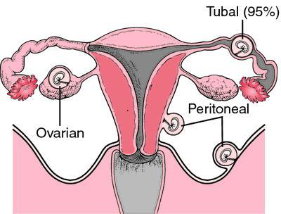 Кровотечения при беременности на раннем сроке: причины