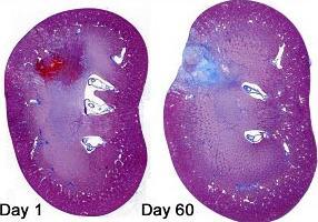 Сколько по времени делают биопсию молочной железы — АНТИ-РАК