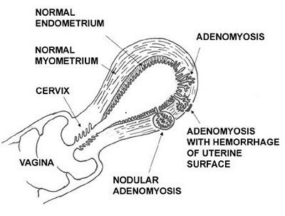 Эндометриоз аденомиоз лечение 19