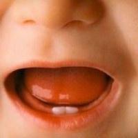 Признаки прорезывания зубов у грудничка, возможные реакции организма и изменения в поведении ребенка