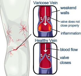 Детралекс или Венарус что лучше при варикозе отзывы врачей сравнение