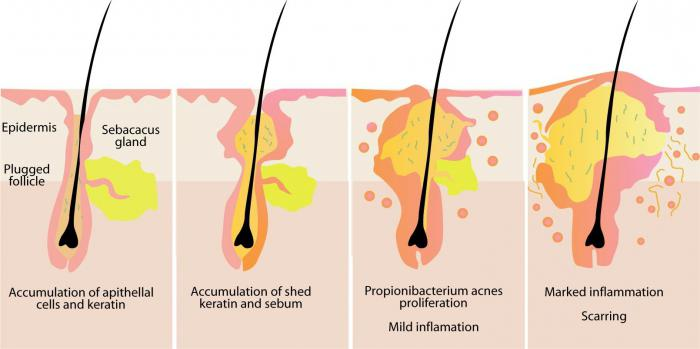 воспаление волосяной луковицы лечение