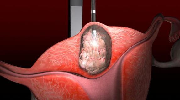 Лечение миомы матки без операции медикаментозные и народные методы