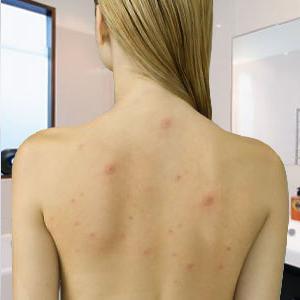 прыщи на спине у женщины причины при беременности