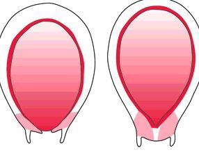 беременность раскрытие шейки матки на 2 пальца