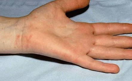 Себорейный дерматит волосистой части головы и лица причины и лечение