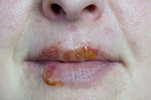 герпесвирусная инфекция