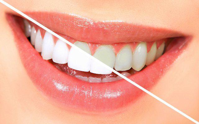 Пасты для отбеливания зубов рейтинг