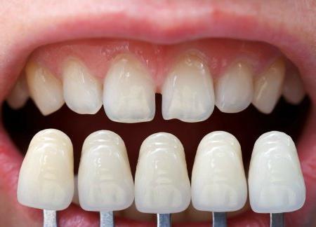 протезирование зубов виды какой протез лучше
